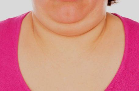 Malu Sebab Ada Double Chin? Ini 4 Cara Untuk Hilangkannya