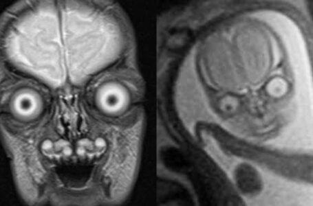 Imej MRI Scan Baby Bikin Seram, Siap Mata Terjojol